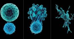 Güçlü bağışıklık sistemi, sağlıklı bağırsaklardan geçiyor